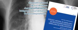 Dispositif national de surveillance des mésothéliomes intégrant la surveillance de leurs expositions