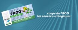 Coupe du FROG : les cancers urologiques